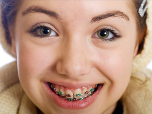 ortodoncia sabadell